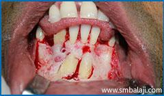 Surgical Exposure Of Impacted Teeth
