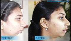TMJ Jaw Joint Surgery
