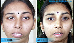 TMJ Jaw surgery
