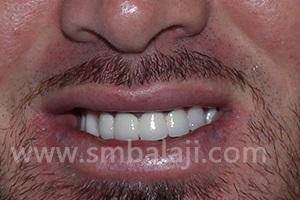 The patient after completion of implant and prosthesis treatment