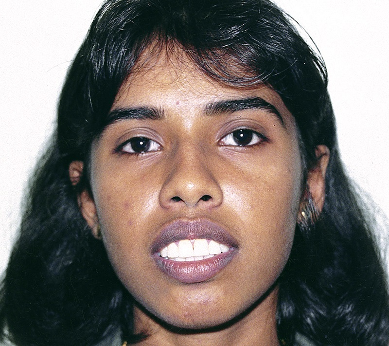 Jaw Surgeon In India