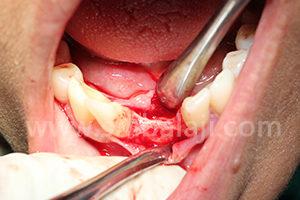 Very thin bone in lower jaw