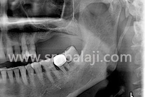X-ray showing region in upper jaw with bone insufficient to place implants