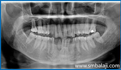 X-ray showing two impacted lower canine teeth