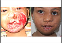 The child suffered severe burns of the left side of her face; the child after reconstructive surgery