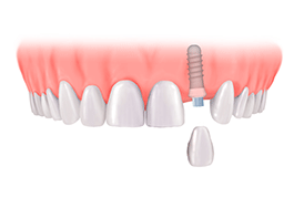 Best Dental Implant in Chennai