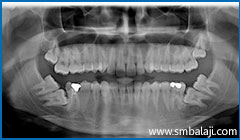 X-ray showing 6 impacted teeth- upper right and left third molars and lower right and left third and second molars