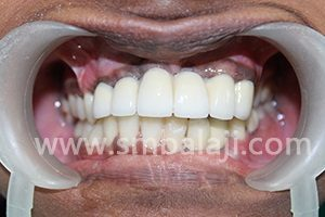 Prosthetic rehabilitation completed with ceramic crowns