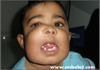 Child At 18 Months Of Age With Tumour In Upper And Lower Jaw