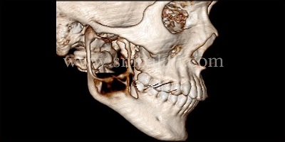Preoperative 3DCT scan showing huge radiolucent lesion involving the entire ramus and angle of the mandible (right side)
