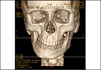 CT scan image showing asymmetry of the facial skeleton