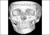 CT scan image showing facial asymmetry of the facial skeleton