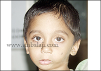 The boy with facial asymmetry with history of trauma to the TMJ
