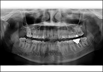 X-Ray Showing Fractured Right Condyle