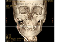 CT scan image showing progress of treatment