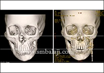 CT scan images before and after treatment, facial asymmetry corrected with distraction osteogenesis