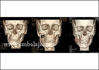CT scan images before, during and after correction of facial asymmetry with distraction osteogenesis