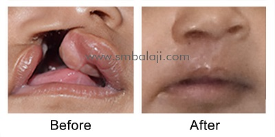 Primary lip repair for unilateral cleft lip and palate