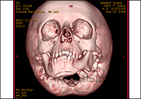 Ct Scan Image Showing Abnormal Jaw Growth Due To Tmj Ankylosis