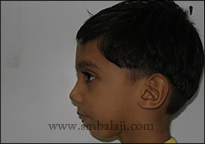 Profile view following successful TMJ reconstruction