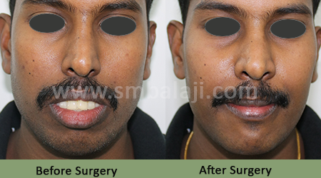 Upper jaw protrusion - Before After Picture