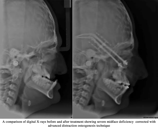 Crouzon syndrome before after image