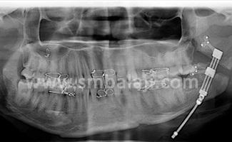 Distraction period- distractor pushing the cut bone segments apart creating new bone in between