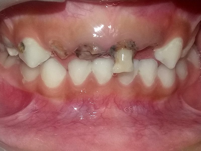 Esthetic crowns before picture