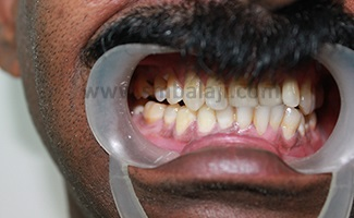 Incorrect contact between upper and lower teeth due to multiple fractures
