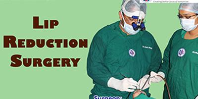 Lip Reduction Surgery