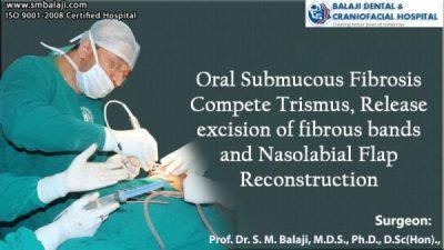 Oral Submucous Fibrosis Compete Trismus, Release excision of fibrous bands and Nasolabial Flap Reconstruction