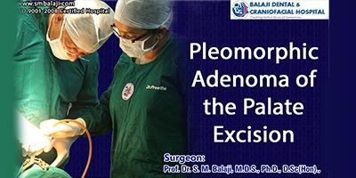 Pleomorphic Adenoma of the Palate Excision