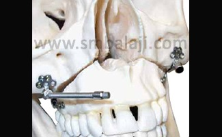 Right and left maxillary internal distractors with flexible activation arms that can be easily placed inside the mouth