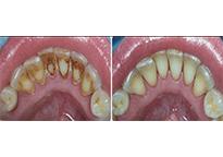 Gum Disease Treatment Cost Chennai India Periodontal