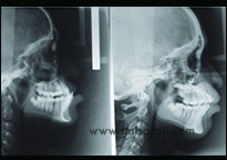 X-Ray Before Treatment Showing Retruded Upper Jaw, X-Ray After Distraction Showing Corrected Upper Jaw