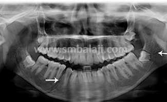 X-ray showing multiple fractures of lower jaw and jaw joint (TMJ)