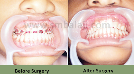 Before After - Upper Jaw Retrusion