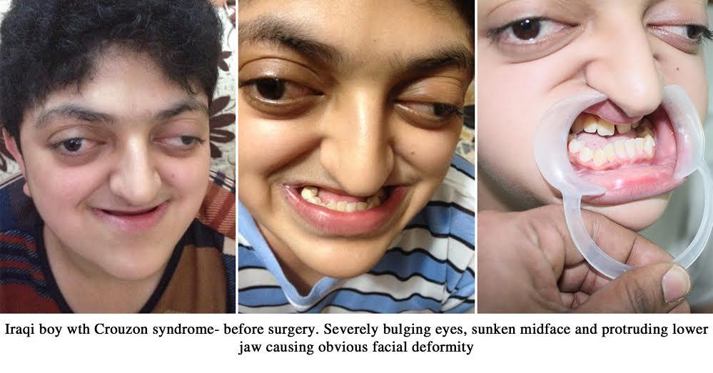 Crouzon syndrome Treatment in India