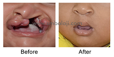 Primary cleft lip repair for a child with unilateral cleft lip and palate