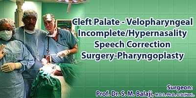 Pharyngoplasty