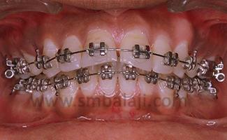 Orthodontist In Chennai Dental Braces Balaji Dental