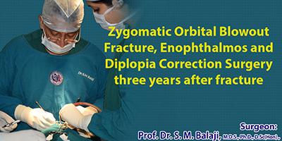 Zygomatic Orbital Blowout Fracture, Trauma care in Chennai India