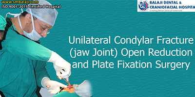 Unilateral Condylar Fracture (jaw Joint) Open Reduction and Plate Fixation Surgery