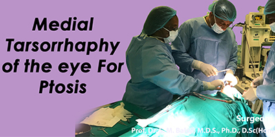 Medial tarsorrhaphy of the eye for ptosis