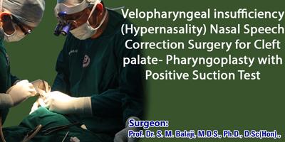 Nasal Speech Correction Surgery for Cleft palate, Chennai, India