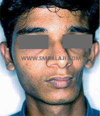 Facial tissue atrophy on left side of the face