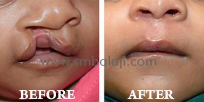 Cleft Lip and palate Surgery, India