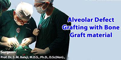 Alveolar defect grafting with bone graft material