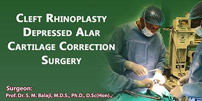 Cleft Rhinoplasty Depressed Alar Cartilage Correction Surgery