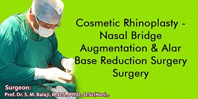Cosmetic Rhinoplasty - Nasal Bridge Augmentation & Alar Base Reduction Surgery